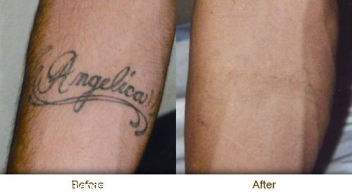 Almost Complete Laser Tattoo Removal