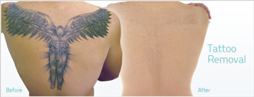 Angel Laser Tattoo Removal