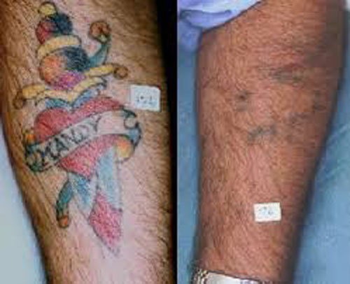 Colour Laser Tattoo Removal
