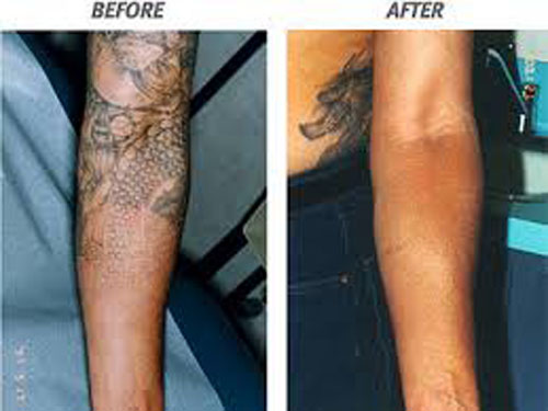 Half Sleeve Laser Tattoo Removal