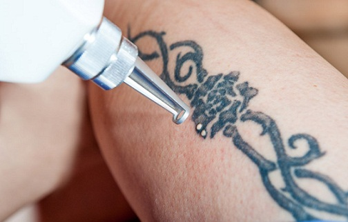laser-tattoo-removal-treatments