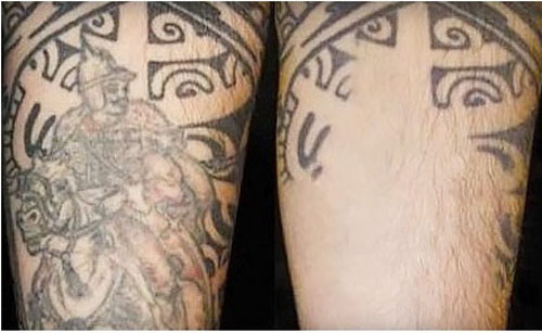 Partial Laser Tattoo Removal
