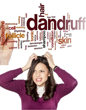dandruff treatment