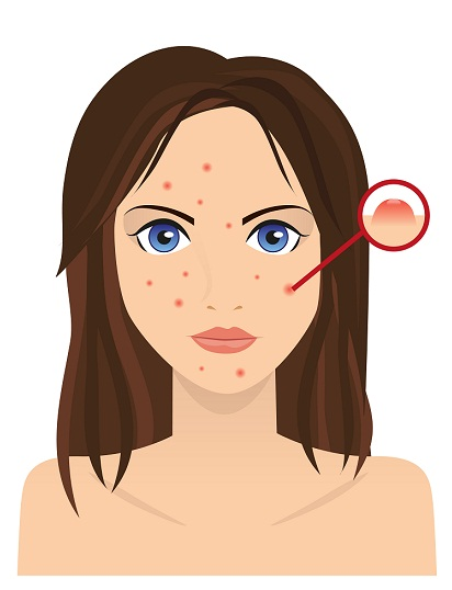 Treatments for Pimples - face with acne