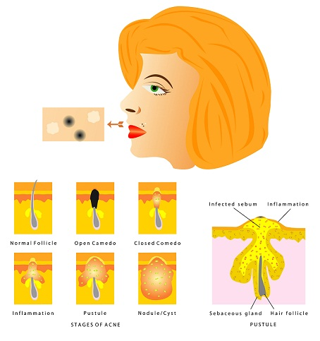 What Causes of Pimples