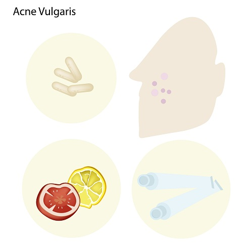 Acne Vulgaris Treatment