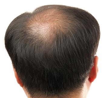 dr-batra-hair-fall-treat