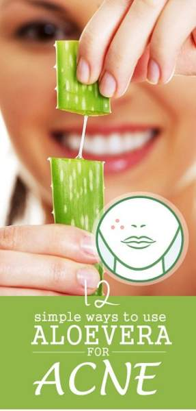 Aloe Vera For Acne - How To Use It