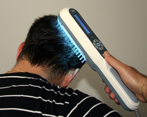 Hair Growth Therapy Treatments 5