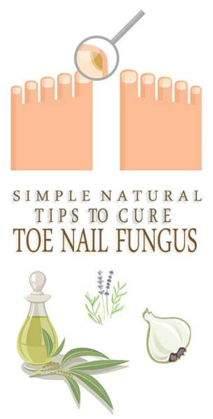 How to Get Rid of Toenail Fungus Fast and Naturally? | Styles At Life