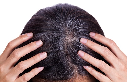 premature greying of hair