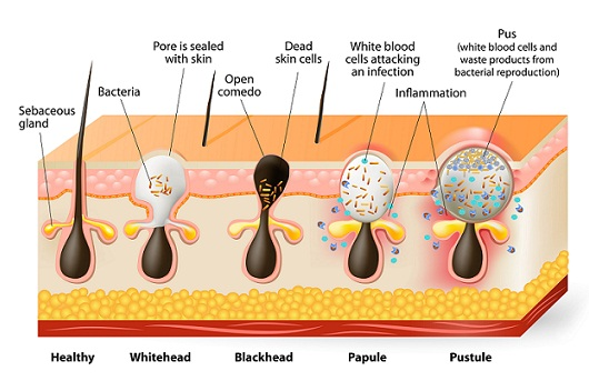 types of pimples