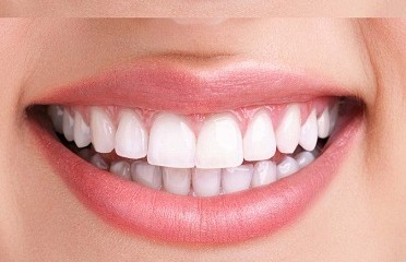 9 Best Home Remedies for Teeth Whitening