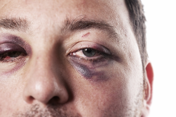 how to get rid of black eye