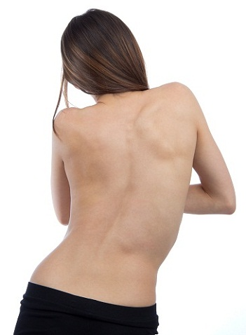 Scoliosis Exercises