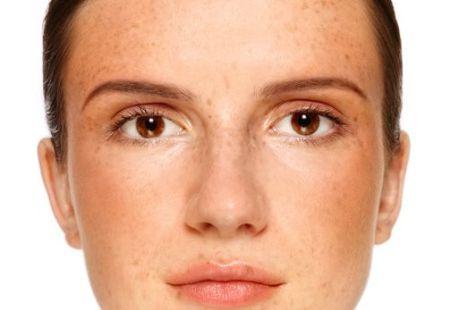 Multani Mitti Treat Skin pigmentation