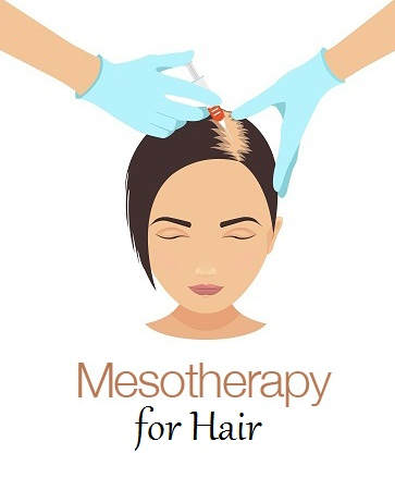 mesotherapy-for-hair