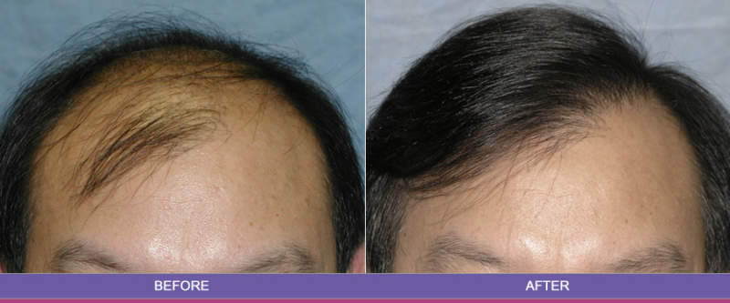 hair transplant centers in chandigarh