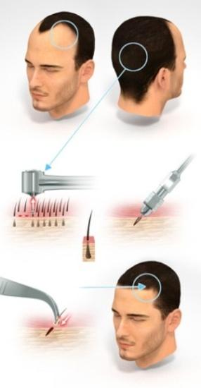 Hair Transplant Centers In Kolkata