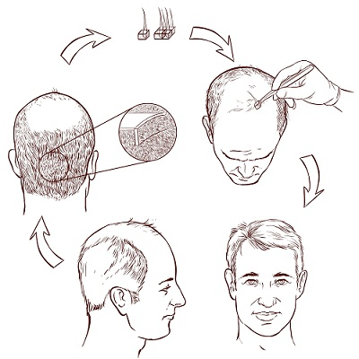 hair transplant centers in bangalore