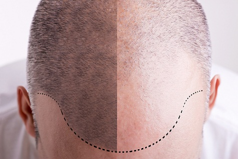 hair-transplantation-in-hyderabad
