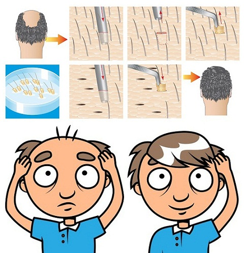 Hair Transplant Side Effects