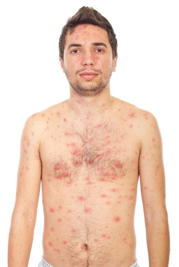 chicken-pox-symptoms-and-causes