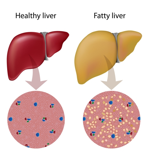 fatty liver symptoms and causes