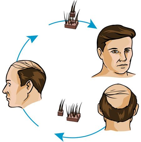 Hair Transplant Centers In Indore