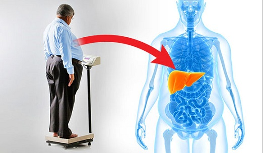obesity causes of fatty liver