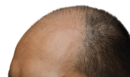 best-hair-transplant-in-jaipur