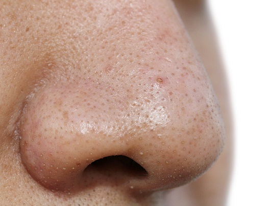 nose blackheads