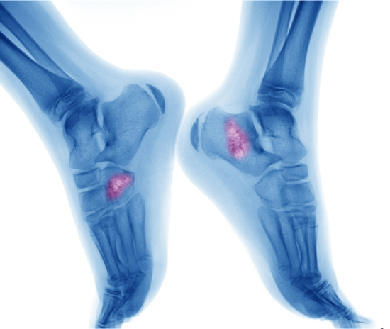 causes-and-symptoms-of-bone-cancer