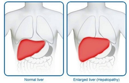 fatty liver symptoms liver enlargement