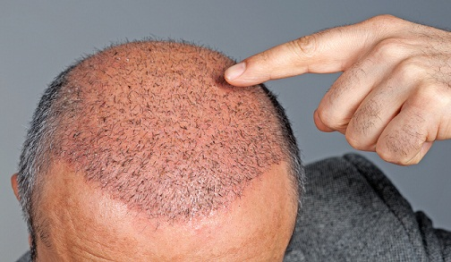 hair-transplant-in-kerala