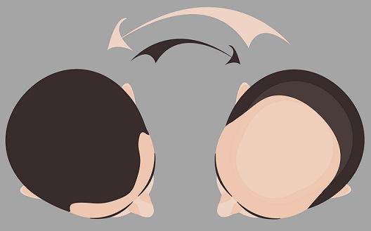 hair-transplant-in-pune