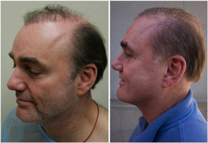 hair transplantation centres in Pune