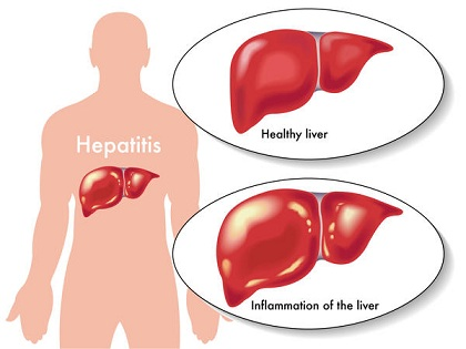 signs of fatty liver liver inflammation