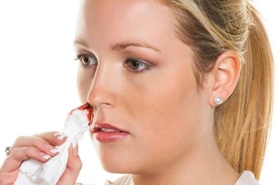 Nose Bleeding Symptoms
