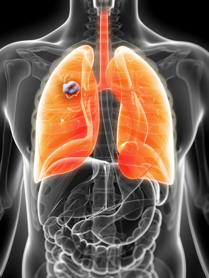 causes-and-symptoms-of-lung-cancer