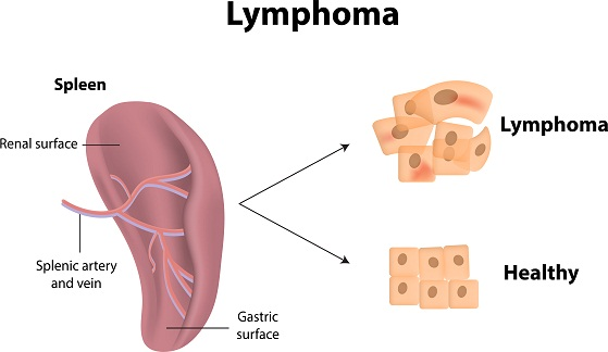 causes-and-symptoms-of-lymphoma