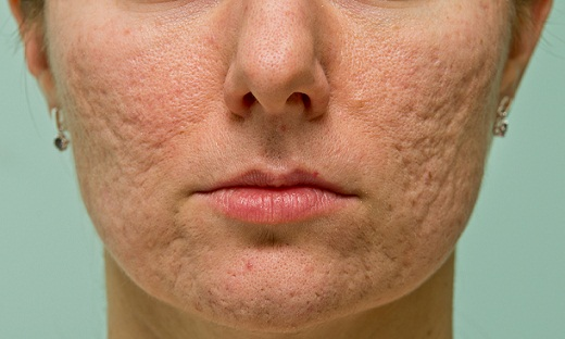 Acne scars old woman