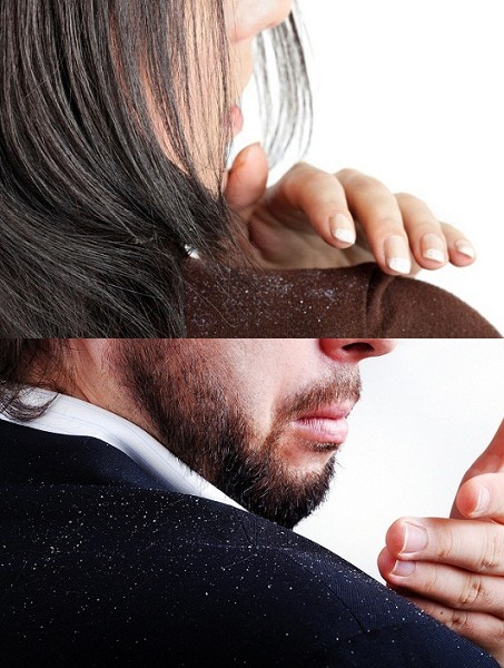 How To Cure Chronic Dandruff