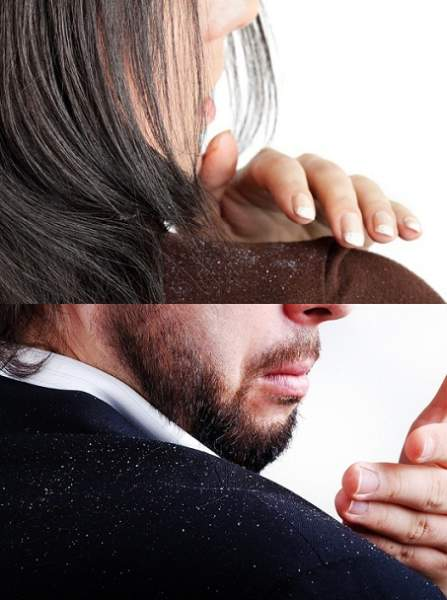 how-to-cure-chronic-dandruff-and-causes