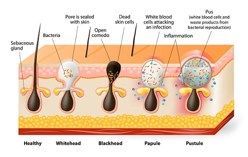 Category of Pimples