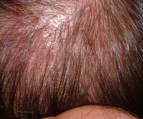 Folliculitis Hair Loss