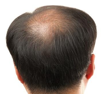 balding-hair