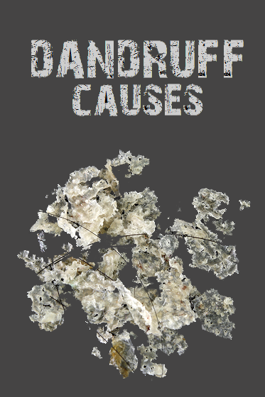 causes-of-dandruff