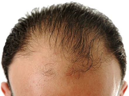Frontal Hair Loss