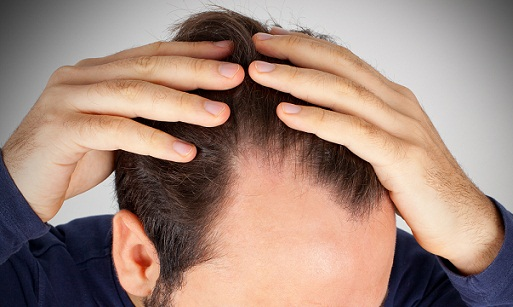 hair loss at temple area